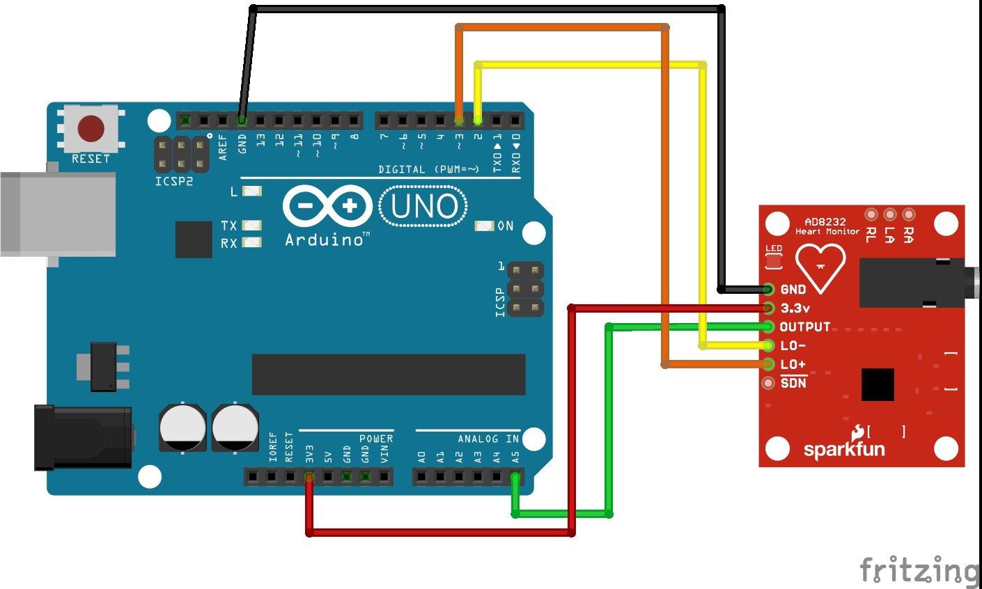 AD8232 ECG Module interfacing with Arduino