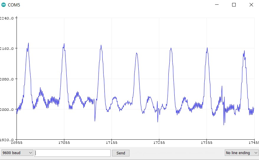 ESP32 pulse serial monitor demo